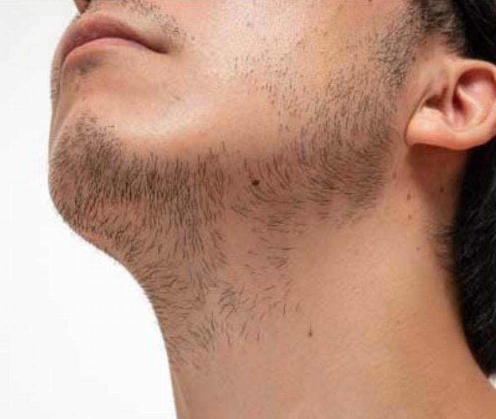 髭脱毛の仕方